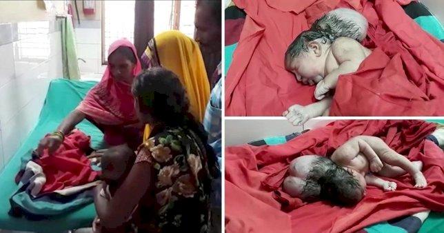 'Üç kafa' İle Doğan Bebek Doktorları Şaşkına Çevirdi