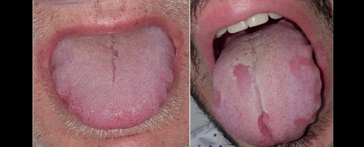 Araştırmacılar, Şişmiş Dil Enfeksiyon Belirtilerinden Biri Olabilir